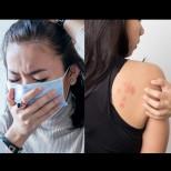 5 неприятни кожни симптома, които говорят, че сме пипнали COVID-19 (Снимки):
