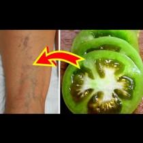 Взех парченце зелен домат и натърках с него разширените вени - помага за часове!