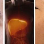 5 първоначални предупредителни признака за чернодробни проблеми