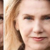 8 неща, с които ще забавите на максимум остаряването и появата на бръчки на лицето ви