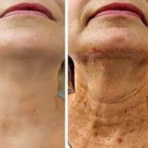 Подхранваща маска, която опъва отпусната кожа по-добре от ботокса! 10 минути и няма да се познаете, трие бръчките без остатък!