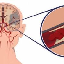 Жизненоважни съвети за предотвратяване на инсулт, особено за жени над 55 години