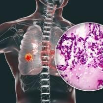 Ранни признаци за рак на белия дроб: за какво да внимавате?