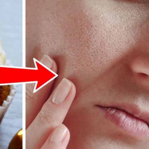 Ето защо ви се появяват такива дълбоки пори по лицето и какво трябва да направите, за да ги премахнете