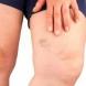 Тромб - 7 ранни симптоми, които никога НЕ трябва да се пропускат!