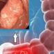 Рак на дебелото черво: 2 признака, които алармират за  незабавно посещение при лекар