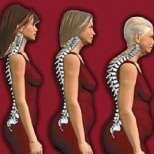 Остеопорозата - тих крадец на костите