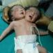 ВИДЕО: Индийка роди бебе с две глави