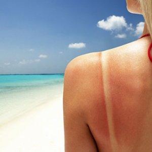 Как да лекуваме слънчевото изгаряне с домашни средства