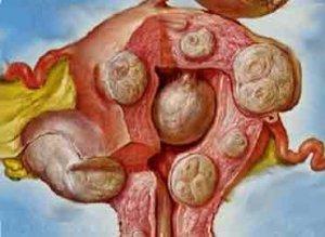 Какво представлява миомата и как се лекува