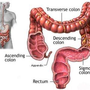 Рак на дебелото черво-симптоми и лечение