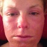 Изгориха кожата на жена в козметичен салон