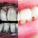 Избелете зъбите си с активен въглен