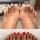 Операция Пепеляшка: Бихте ли причинили това на краката си?