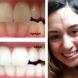 Лесен начин за избелване на зъбите