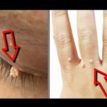 Най-ефективните домашни лекарства срещу брадавици