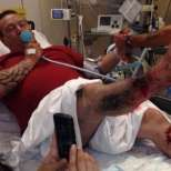 Електронна цигара внезапно избухна и причини сериозни наранявания на мъж, изгубил 1 литър кръв при инцидента!