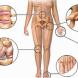 Oсобености на остеоартрозата