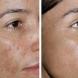 Вижте как може да имате перфектната кожа без петна
