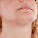 Как да спрем нежелано окосмяване по лицето