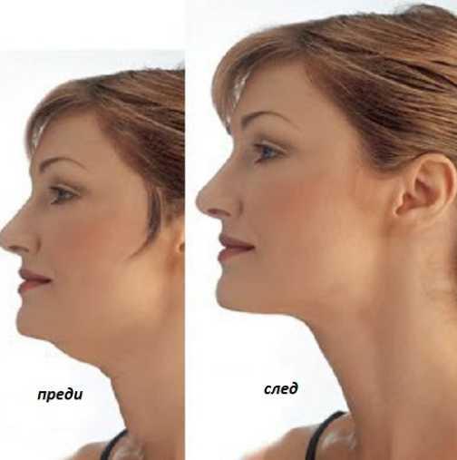 Лесни упражнения срещу двойна брадичка
