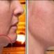 Премахване на двойната брадичка веднага по-лесен начин