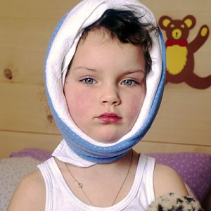 Заушка-симптоми и лечение