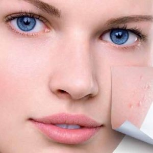 Грижи за проблемна кожа