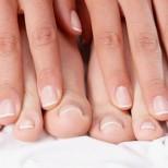 5 неща които вашите нокти се опитват да ви кажат-кожички, промяна в цвета и структурата ...