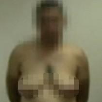 Шокиращо: Клиниките са пълни с мъже, на които им растат гърди