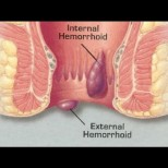 Невероятна рецепта лекува хемороиди