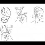 Сваляне на кръвното с масаж на ухото, бързо и лесно