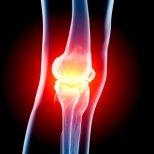 Остеоартрит-симптоми и лечение