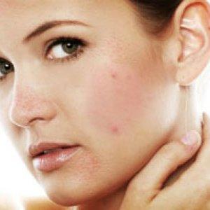 Как да се предпазим от пъпки по лицето