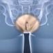Как изглежда операция за смяна на пола-Видео