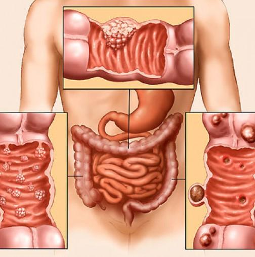Ракът на дебелото черво изпраща сигнали 2 години по-рано!