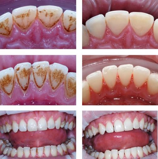 Само 2 съставки и зъбният камък се премахва за секунди. Няма нужда вече да хвърляте излишни пари по зъболекари