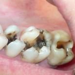 Лесна рецепта, с която ще оправите всичките си кариеси без зъболекари и пломби