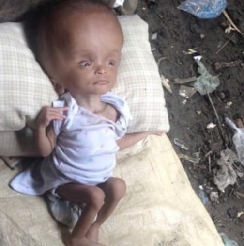 Жена намери изоставено бебе върху купчина боклук! 2 години по-късно няма да го познаете!