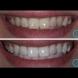 С тази подправка ще избелите мигновено зъбите си. Още след първата употреба ще имате по- бели зъби от всякога