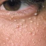 3 природни начина да премахнете милиумите по кожата си- малките бели точки, които колкото и да ги стискате не се махат