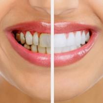 Забравете за зъболекаря и скъпите средства за избелване! С този домашен лек зъбите ви ще станат като на холивудска звезда (ВИДЕО)!