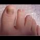 Рецептата на Димков, която топи гъбички по ноктите