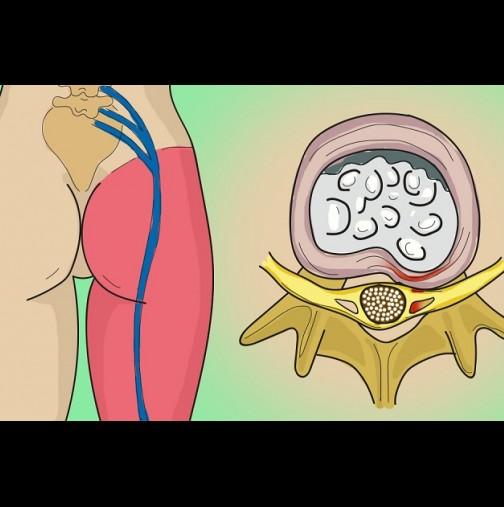 Оток и болка в задната част на коляното