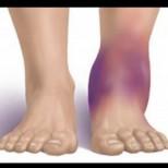 Подуват ли ви се краката? Това е знак за напредналo заболяване. Ето кое и защо не трябва да го пренебрегвате