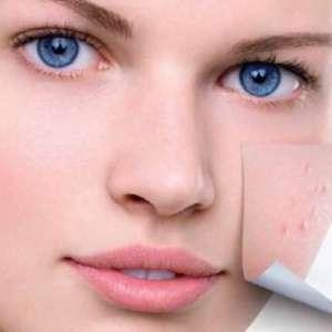 Как да почистим черните точки и порите на лицето