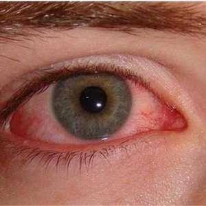 Как да лекуваме възпалени очи с природни средства