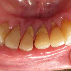 Защо е вреден зъбният камък за зъбите