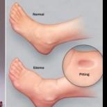 8 симптома, че бъбреците ви не функционират добре– вземете мерки!