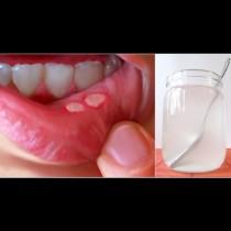 Болезнените язвички в устата вече не са проблем: лекувам стоматита вкъщи лесно и бързо. Помага даже и на сина ми!